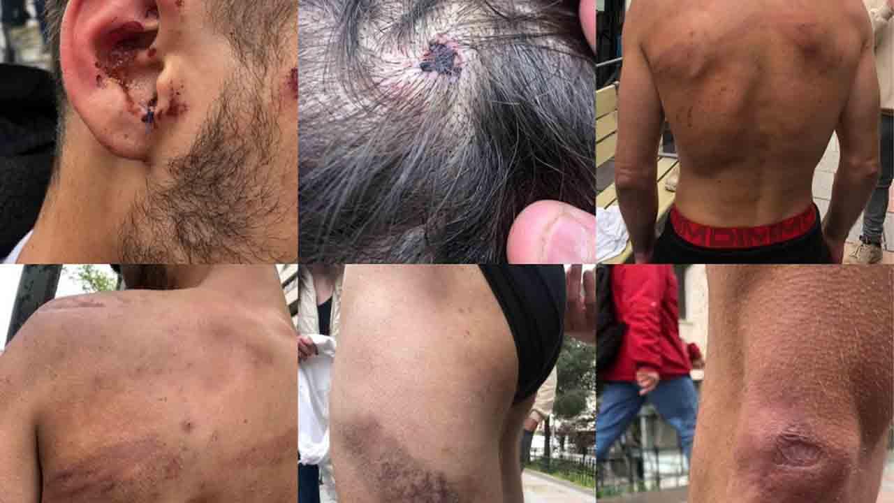 Un joven detenido en Vallecas denuncia que dos guardias civiles le han dado una paliza en un cuarto de los Juzgados