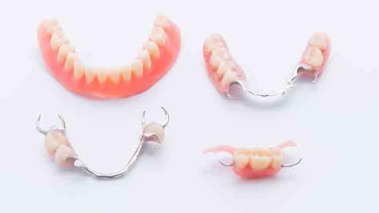 5 tipos de dispositivos de prótesis dental